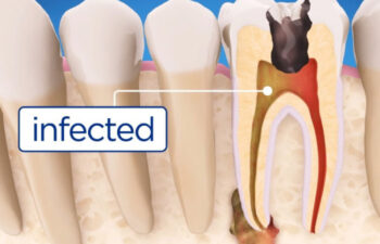 Root Canals vs Tooth Extractions Mooresville, NC