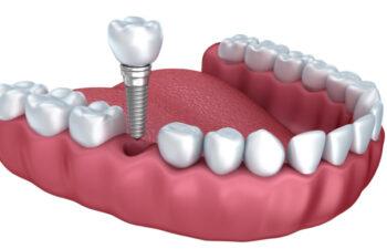 illustration of a lower jaw demonstrating how dental implants work